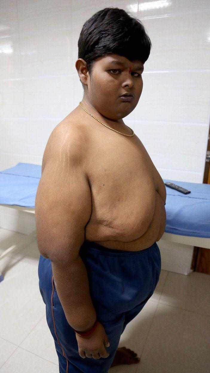 10 éves fiú fogyás