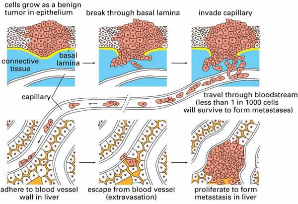 fogyás rinorrhea