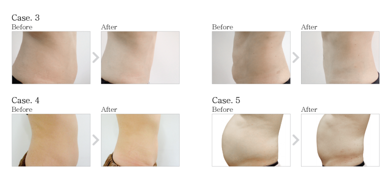 Tippek a bőr alatti zsír tisztítására - Hogyan lehet könnyen elveszíteni a hasi zsírt