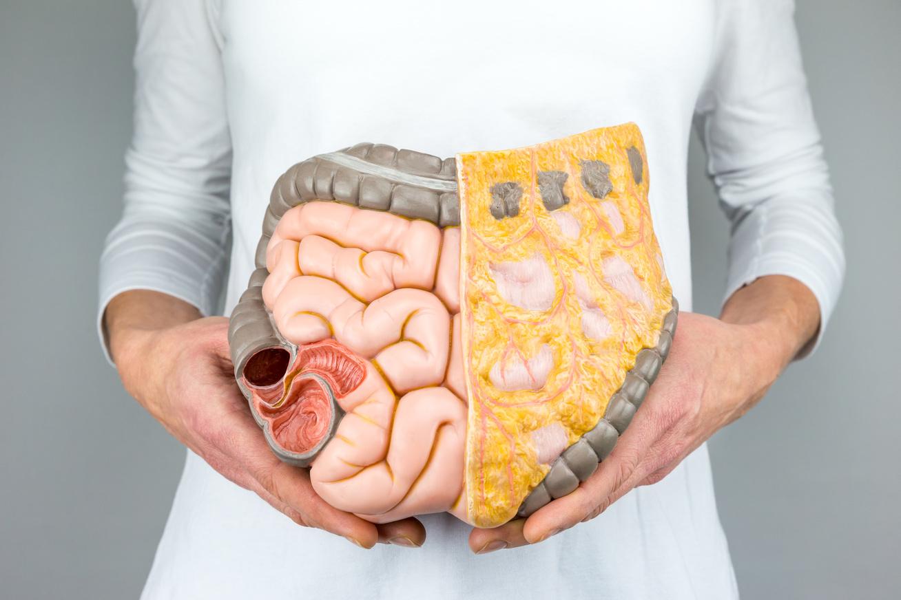 hogyan égethető zsír a zsírszövetben fizz fogyás koronázás utca