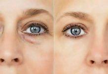 Így jelez az arc, ha ideje odafigyelnie magára