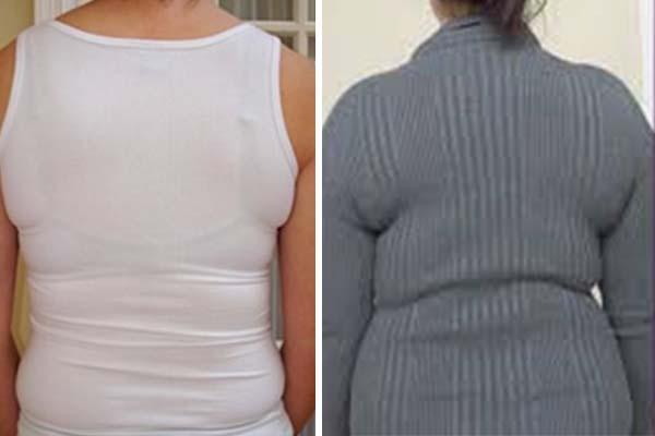 43 és küzd a fogyásért zsírégetés két hónap alatt