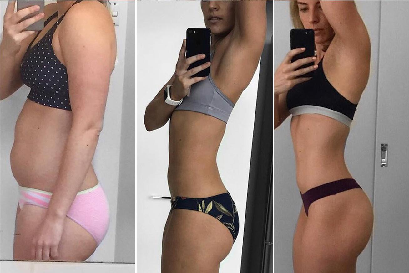 3 súlycsökkentő műtét