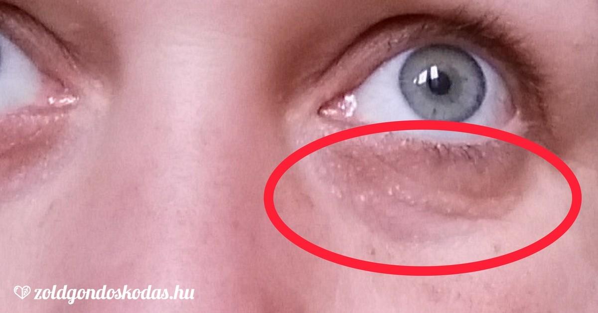 hogyan lehet eltávolítani a szemhéjon lévő zsírlerakódásokat t3 fog nekem fogyni