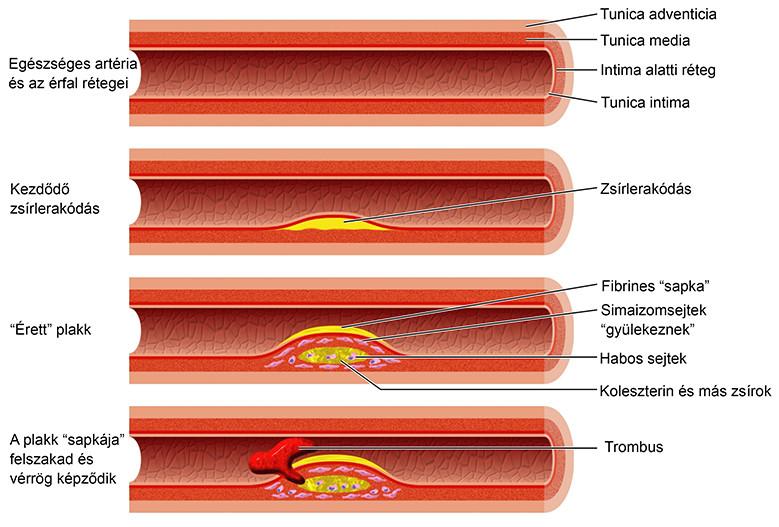 veszít zsírt, amikor kakál? hogyan lehet elveszíteni az utolsó kiló zsírt