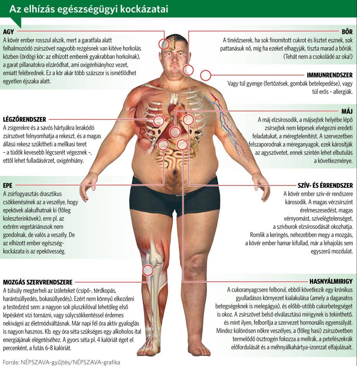 Extrém túlsúly diéta