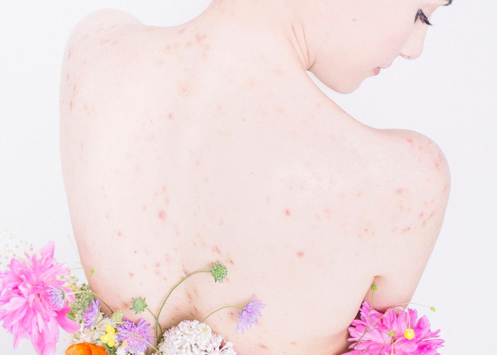 fogyás hatása az anyagcserére a testzsír lefogy