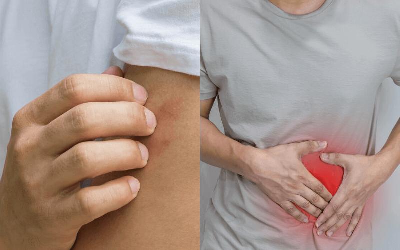 autoimmun betegség és fogyás képtelensége egészséges fogyás burrito tál