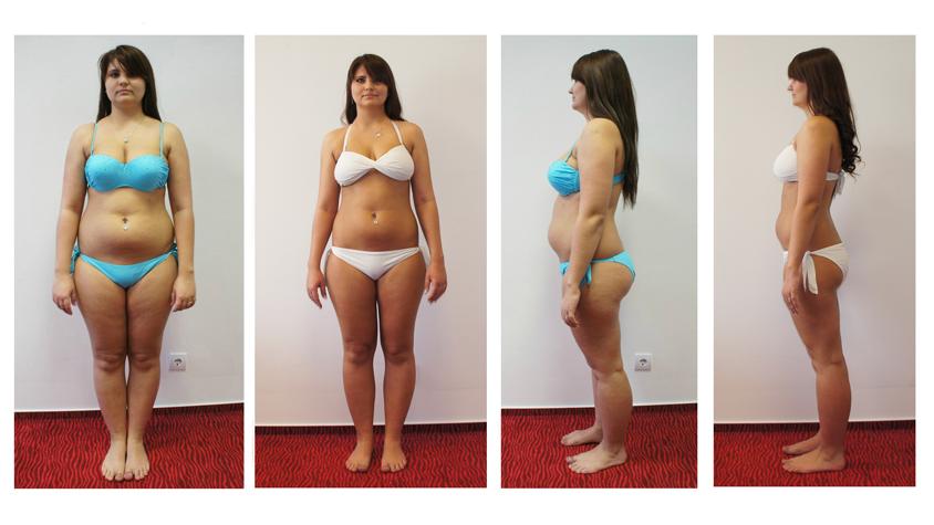 mennyi zsírt veszít a testzsír 50 kg fogyás bőr